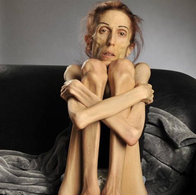 Výsledek obrázku pro anorexie