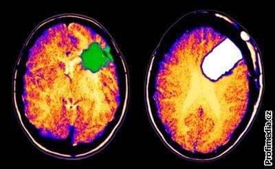 Brain Tumor Center  UCSF Medical Center