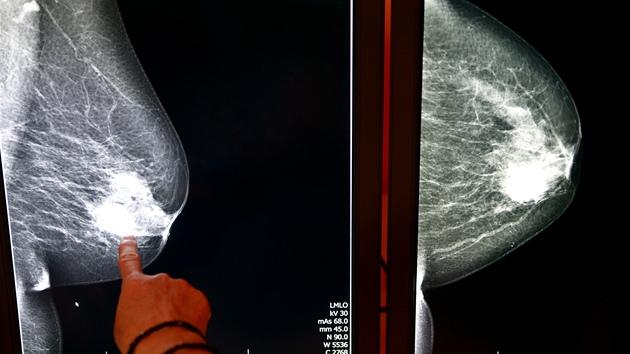 Za svůj život se setká s rakovinou každı třetí obyvatel České republiky. Nejčastějším nádorem je u žen rakovina prsu a mužů rakovina plic. Podívejte se, co se děje v těle při rakovině.