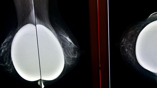 Na mamografu je možné vyšetřit i ženy, které mají implantáty.