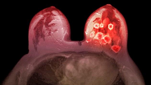 Na snímku z magnetické rezonance je oranžovou barvou znázorněn nádor prsu u 32leté pacientky. Rakovina prsu je v Česku nejčastější nádorové onemocnění u žen. I přes pokrok v léčbě je nejčastější příčinou úmrtí žen na nádory.