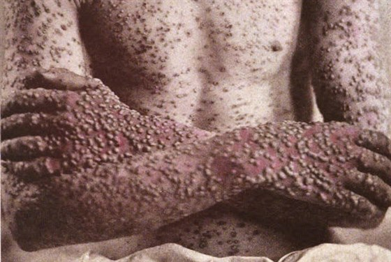 Pacient postiženımi pravımi neštovicemi