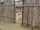 "Iveily Morales, 3, who is part of the albino or ""Children of the Moon"" group..."