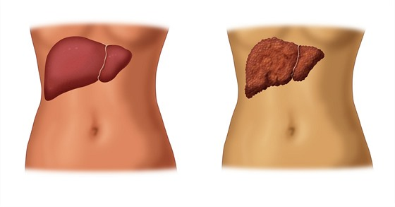 Vlevo zdravá játra, vpravo nemocná. Pokud není hepatitida C léčena, může vést k...