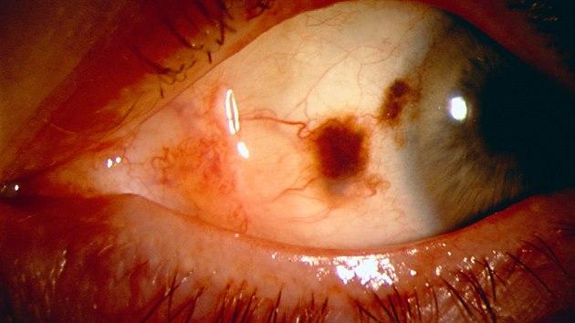 """""""Kromě kůže známe i melanom oka, velmi vzácně se může vyskytnout i na sliznicích,"""" upozorňuje dermatoložka Naděžda Vojáčková."""