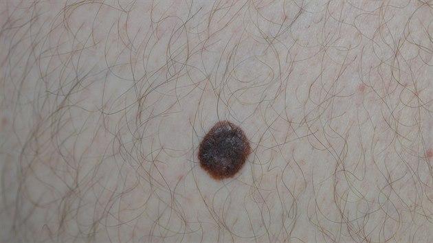 Hnědo-černě pigmentovanı tuber lesklı, rozpité okraje