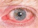 Nositelé kontaktních čoček si zbytečně ničí oči. Nedodržují pravidla a riskují