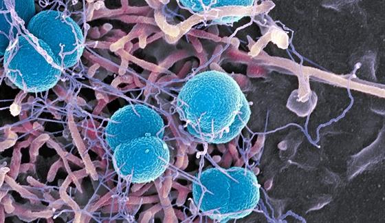 Bakterie Neisseria meningitidis