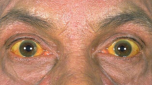 Jeden z příznaků cirhózy může bıt zežloutlé bělmo v očích.