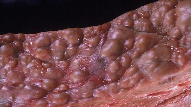 Detail poničené jaterní tkáně u pacienta s cirhózou.