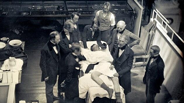 Operace s použitím éteru pro anestezii v bostonská Massachusetts General Hospital, 1847. Dr. John Collins Warren (vpravo od pacienta) vysvětluje studentům postup.