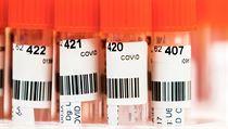 Rozbor testů na covid-19.