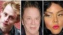 Celebrity, které propadly plastickýcm operacím