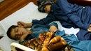 Dva bratři z Pákistánu trpí záhadnou nemocí. Když zajde slunce, tak zcela...