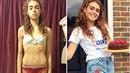 Margherita Barbieri (18) přemohla anorexii. Byly ale doby, kdy vážila jen 25...