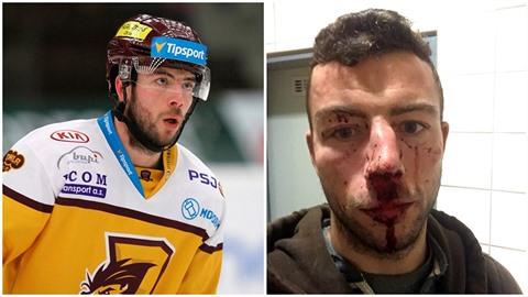 Jihlavský hokejista Michal Hlinka byl napaden skupinou nepřizpůsobivých...