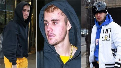Justin Bieber děsí všechny svoje fanoušky. Vypadá jako uživatel pervitinu!