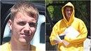 Justin Bieber má zjevně problémy s pletí. Obličej má plná akné!