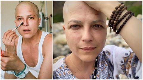 Kdysi nádherná Selma Blair dnes podstupuje náročnou léčbu.