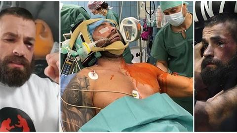 Karlos Vémola má za sebou operaci ramene.