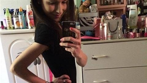 Anička bojuje s anorexií.