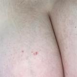 Takto dopadla prsa Charlotte Štikové.