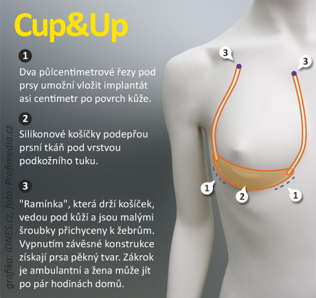 infografika - Plastika Cup and Up