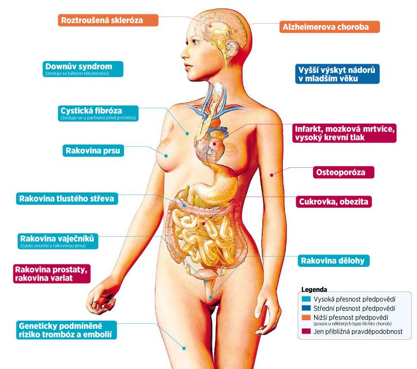 Jaké nemoci předpoví genetické testy