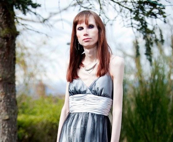 randí s anorexií