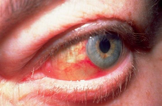 Cervene Oko Neni Zdrave Muze Signalizovat Mnoho Nemoci Idnes Cz