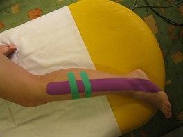 Tenisový loket: příznaky, léčba (entezopatie) - byroncaspergolf.com