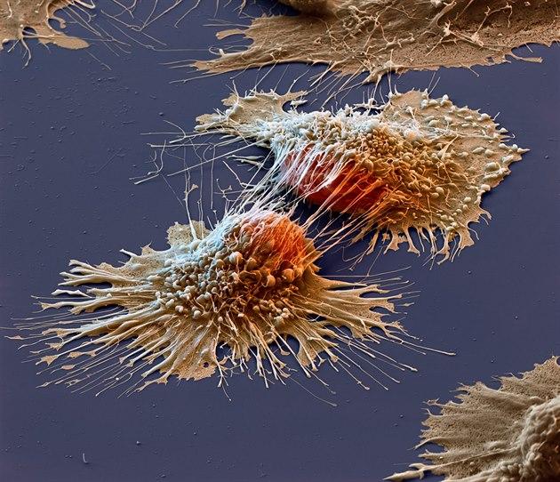 Kolorovaný snímek rakovinových buněk z elektronového mikroskopu