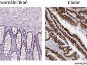 Protein p53 značený tentokrát hnědě (drobné oválky – buněčná jádra – v levé...
