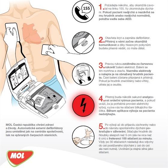 Jak správně použít defibrilátor - infografika