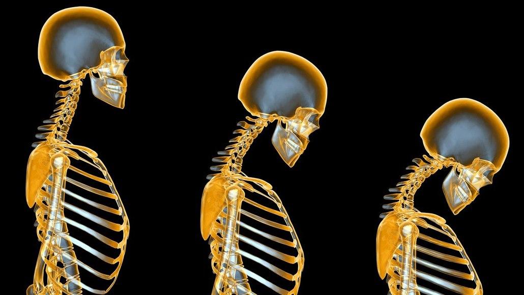 Osteoporóza udeří většinou po padesátinách. Pomůže jóga i chůze