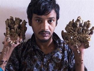 Bangladéšan Abul Badžandar, jehož končetiny kvůli kožnímu onemocnění...