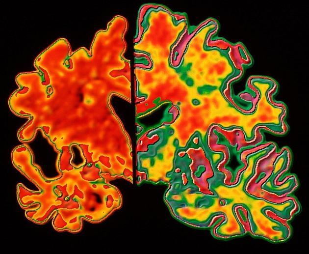 Alzheimerovu nemoc by mohl brzy odhalovat jednoduchý test