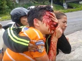 Šestnáctiletý Rufo Chacon zraněný při střetu demonstrantů s...