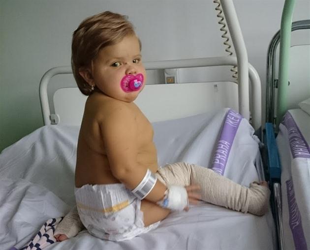 Roční Ester podstoupila transplantaci jater. Je bojovnice, říká maminka