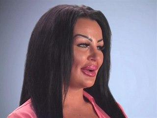 Krystina Butelová miluje plastické operace a úpravy vzhledu.