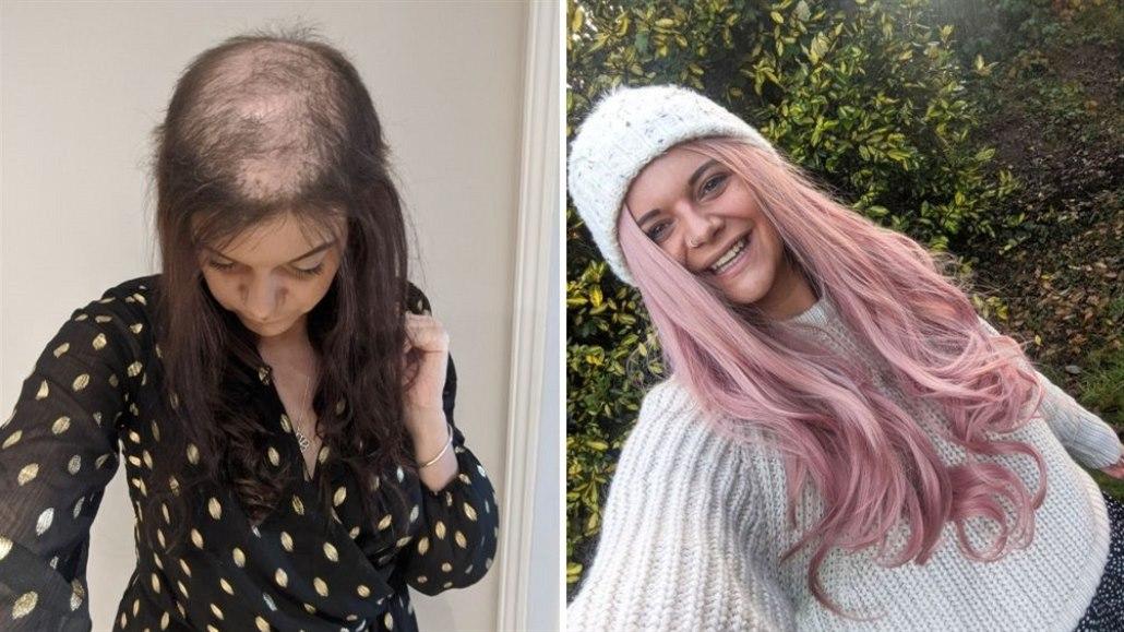 Žena si roky trhala vlasy, s poruchou pomohla terapie a paruky