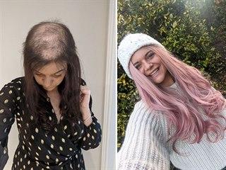 Hattie Gilfordová věří, že za pár měsíců vlasy dorostou a bude chodit bez...