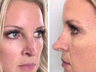 Megan a její nos před finální operací