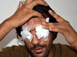 Abdul Baqi se chtěl oženit z lásky, rodina mu proto vydloubla oči. (19. května...