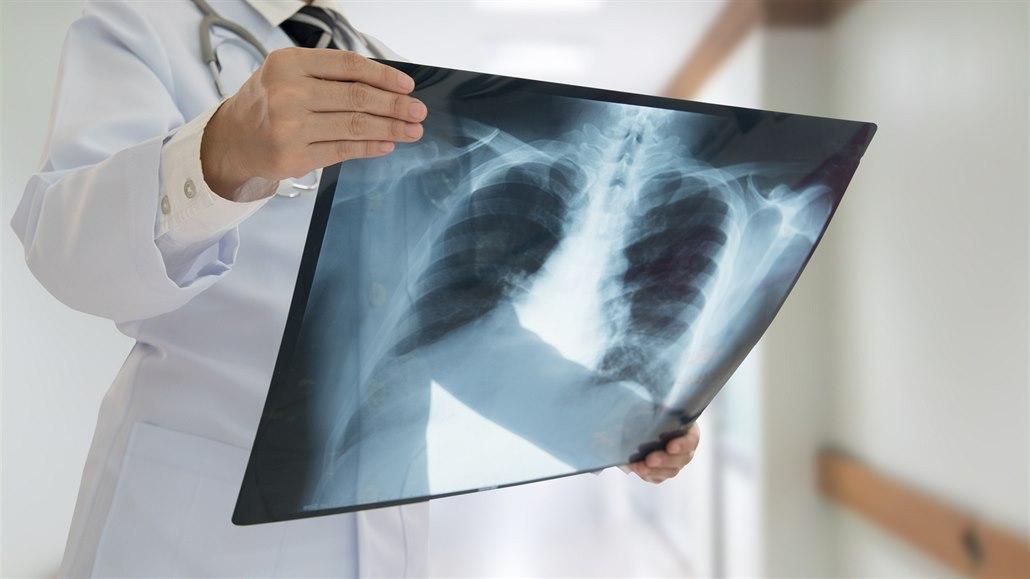 STO OBJEVŮ: Paprsky X dnes vracejí zdraví. Na začátku zabíjely