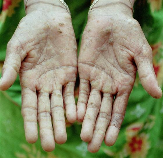 Ruce s černými jizvami, příznakem otravy arzénem. Snímek pochází z oblasti...