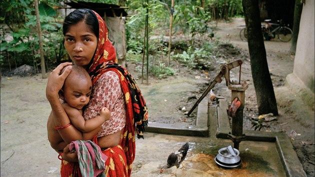 Žena z vesnice Jhikargacha v Bangladéši s černými jizvami na pažích a bocích, příznakem otravy arsenem. Jediný zdroj pitné vody pro ni představuje červeně označená pumpa, což znamená, že voda je kontaminována arzénem. (15. června 2000)