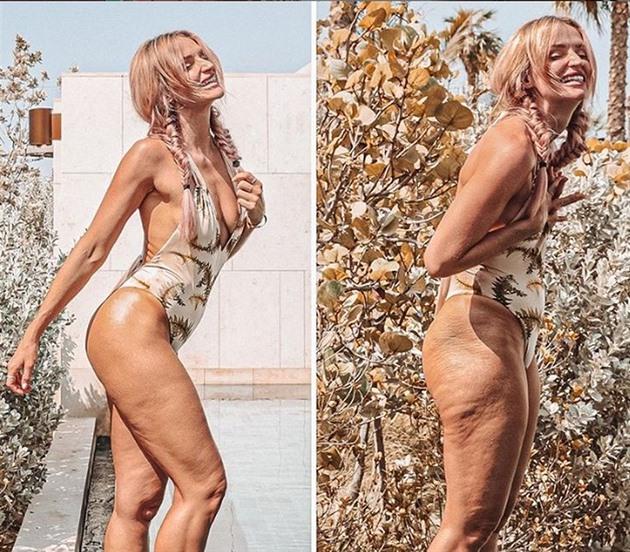 Influencerka propaguje reálná ženská těla s celulitidou