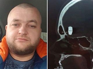 Vladimir Krutov žije deset let s kulkou v hlavě.