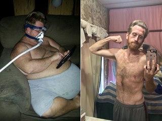 Zach Moore před operací a po ní